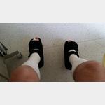 Die Füße in Verbandsschuhen im Krankenhaus Buchloe.
