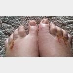 Geschwollene Füße nach Operation